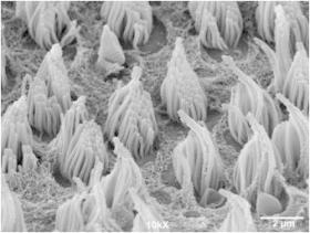 SEM hair cells